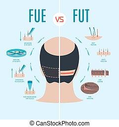 fut, vs, fue