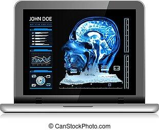 future., médecine, monde médical, vecteur, mri, cahier, autre, analyzes., moniteur, illustration, real-time, blanc