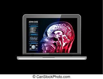 future., medicina, medico, vettore, mri, quaderno, altro, nero, analyzes., monitor, illustrazione, real-time