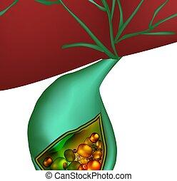 gallstones., cholelithiasis., aislado, ilustración, infographics., vector, inflamación, plano de fondo, gallbladder., cholecystitis.