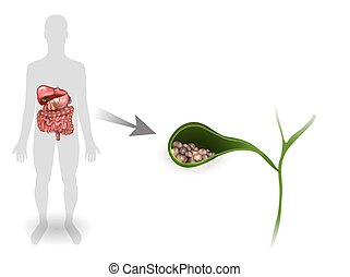 Gallstones in the Gallbladder, anatomy bright detailed illustration