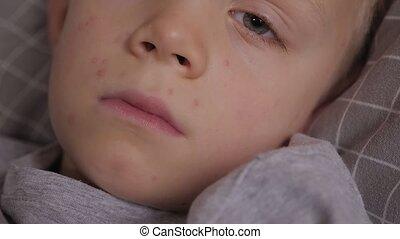 garçon, portrait, peu, poulet, gros plan, malade, triste, lit, pox.