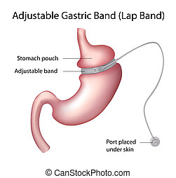 Gastric Band Weight Loss Surgery , eps8