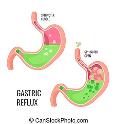 Gastric reflux medical promo poster with human organ. Closed...