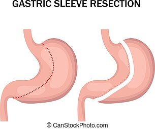 Gastric sleeve resection infographic. Stomach reduction surgery for weight loss. Medicine concept. Vector illustration.