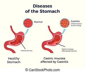 Gastritis Stomach Set - Human normal stomach compared to ...