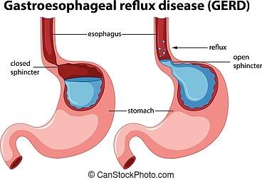 Gastroesophageal reflux disease anatomy illustration