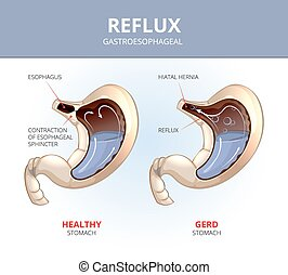 Gastroesophageal reflux disease. Healthy and sick stomach. Medicine anatomy healthy, organ and illness illustration. Vector medical GERD infographic