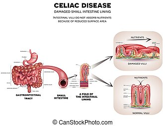 Gastrointestinal tract anatomy and Celiac disease affected small intestine villi. Unhealthy villi with damaged cells and healthy villi. Intestinal villi do not absorb nutrients because of reduced surface area.