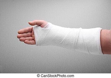 gebrochener arm, knochen, gibsverband