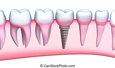 gedetailleerd, dentaal, implantaat, aanzicht