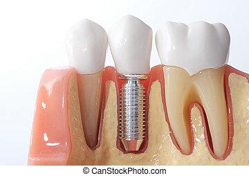 genérico, dental, dentes, modelo