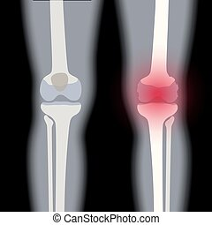 genou, arthrite, jointure