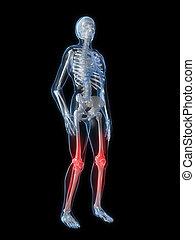 genou, jointures enflammées