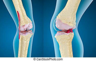 genou, ostéoporose, jointure