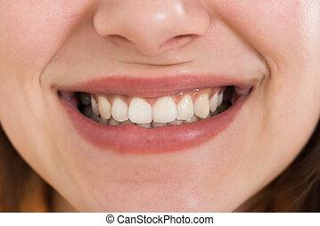 gesunde, lächeln, weißes, weibliche , z�hne