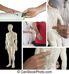 Collage showing five different pictures including handing over medical form, consulting with acupuncturist, acupuncture model on black background and close ups of model