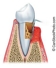 gingivitis, fortgeschritten