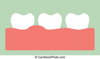 gingivitis or gum disease, gum inflammation before...