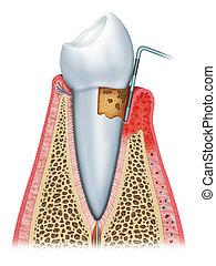 gingivitis, sekunde, ihr, buehne