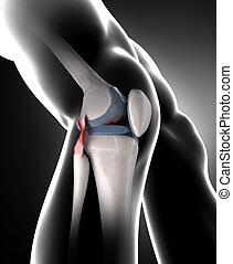 ginocchio, arthrisis