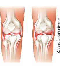 ginocchio, artrite, umano