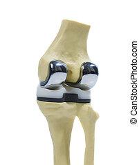 ginocchio, modello, sostituzione, plastica