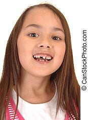 Girl loosing her teeth.