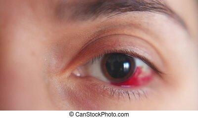 girl., oeil, cornea., abrasion, hémorragie, macro.