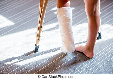 girl with a broken leg .close-up of feet, one with a plaster bandage. foot splint for treatment of injuries from broken bones. ankle sprain after jumping on the trampoline