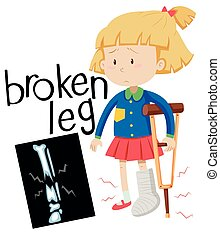 Girl with broken leg and x-ray film