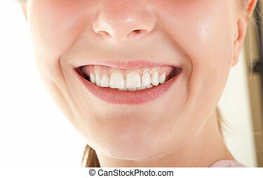 visible teeth