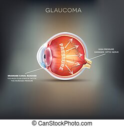 Glaucoma. Detailed anatomy of Glaucoma on a abstract ...