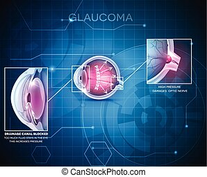 Glaucoma eye disorder abstract blue technology background
