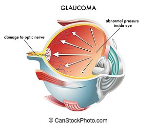 Illustration of the causes of glaucoma