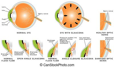 Glaucoma is an eye disease and a leading cause of blindness...