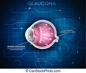 Glaucoma, vision disorder. Detailed anatomy of Glaucoma, eye disorder on a blue technology background.