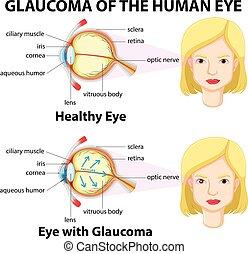 glaukom, ögon, mänsklig