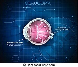 glaukom, oordning, vision