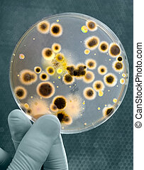 Gloved Hand holds Petri dish with bacteria culture