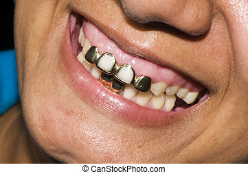 gold teeth dentisty native corn island nicaragua - mouth of...