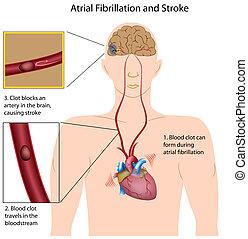golpe, fibrilación, atrial