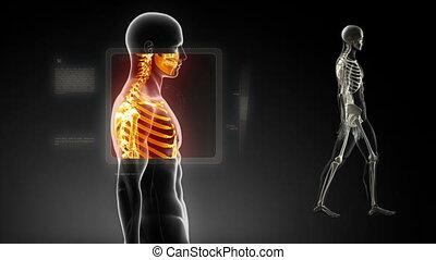 Good posture concept %u2013 x-ray spine
