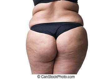 gorda, corpo feminino, com, celulite, gorduroso, quadris, e,...