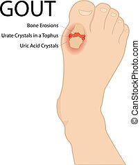 gout, arthritis., illustration., medico, vettore, umano, foot.