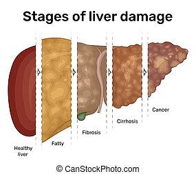 gradual, dano, fígado, ilustração