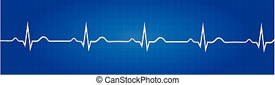 graficzny, elektrokardiogram, normalny