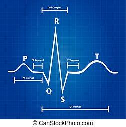 grafisk, elektrokardiogram, normal