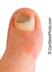 grande, dedo del pie