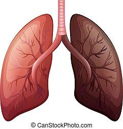 grande, diagrama, escala, cancer pulmonar